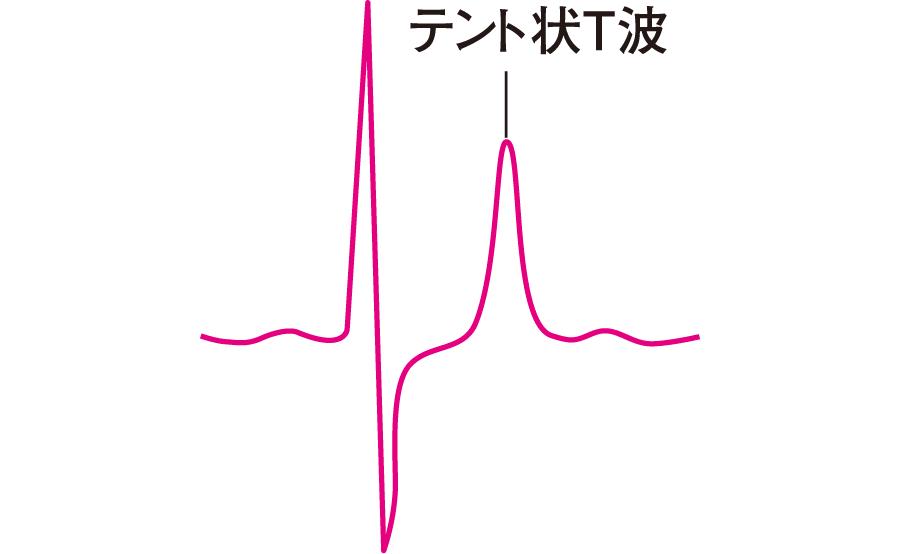 インスリン カリウム