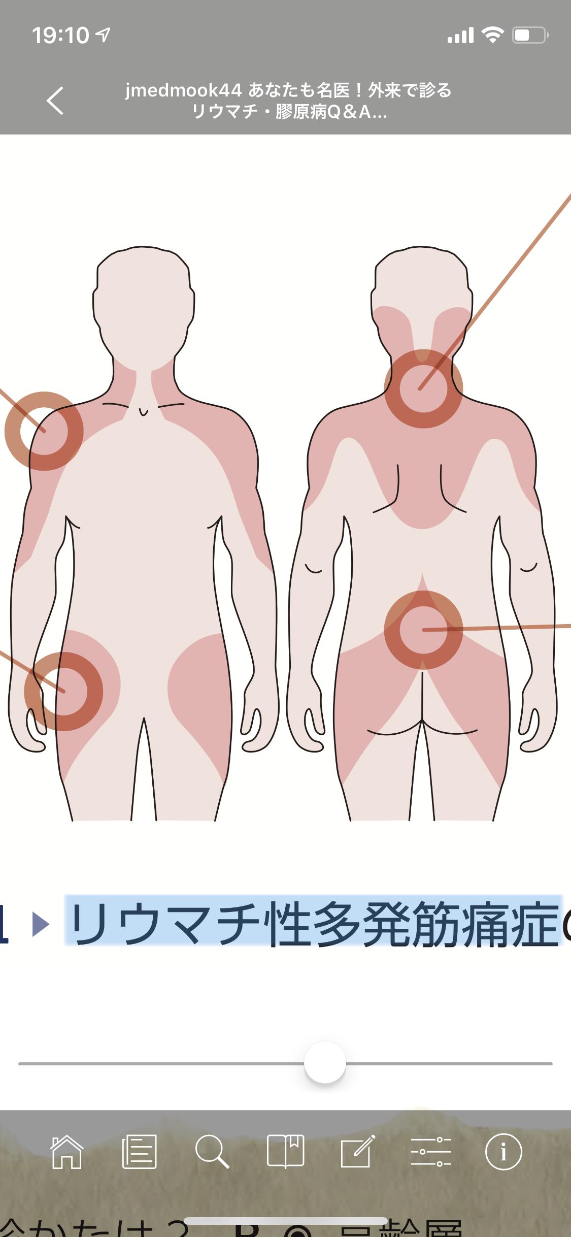 リウマチ性多発筋痛症の疼痛部位 森永 康平 @ ミルキク note