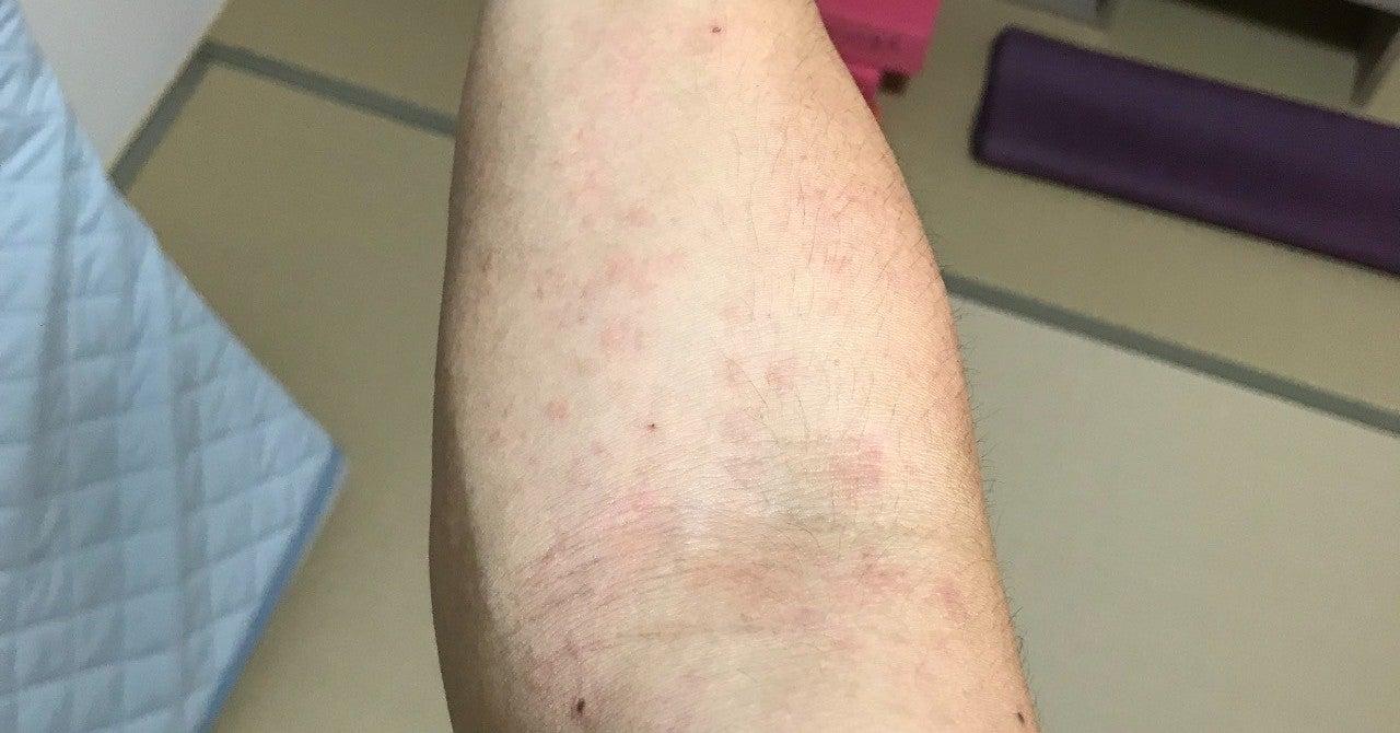 画像 麻疹 ストレス 蕁