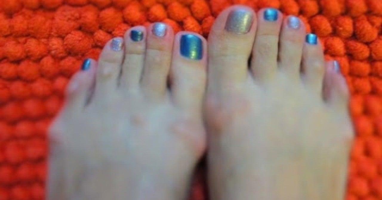 付け根 小指 痛い 足 の の 足の小指にタコができているのはなぜ?原因と対策
