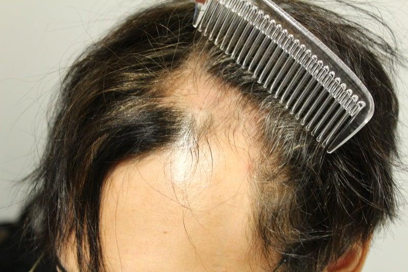 効果 ない ミノキシジル ミノキシジルの効果とは 実際に使用した際の発毛効果と副作用を解説