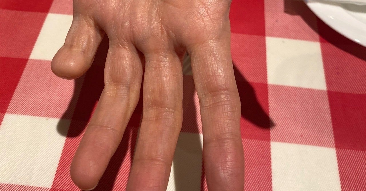猫組長 指