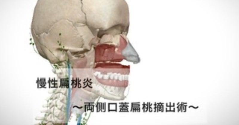 術 腺 摘出 口蓋 扁桃
