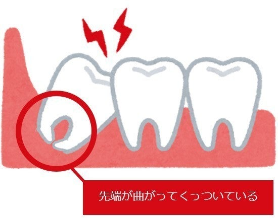 血 ない 抜歯 が 止まら