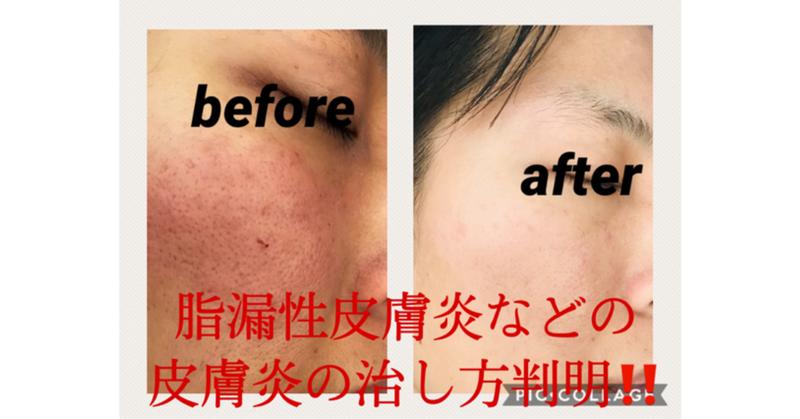 脂 漏 性 皮膚 炎 治し 方