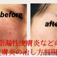 炎 脂 完治 性 皮膚 漏