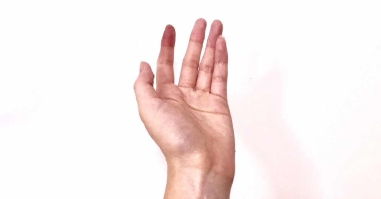 親指 痛み