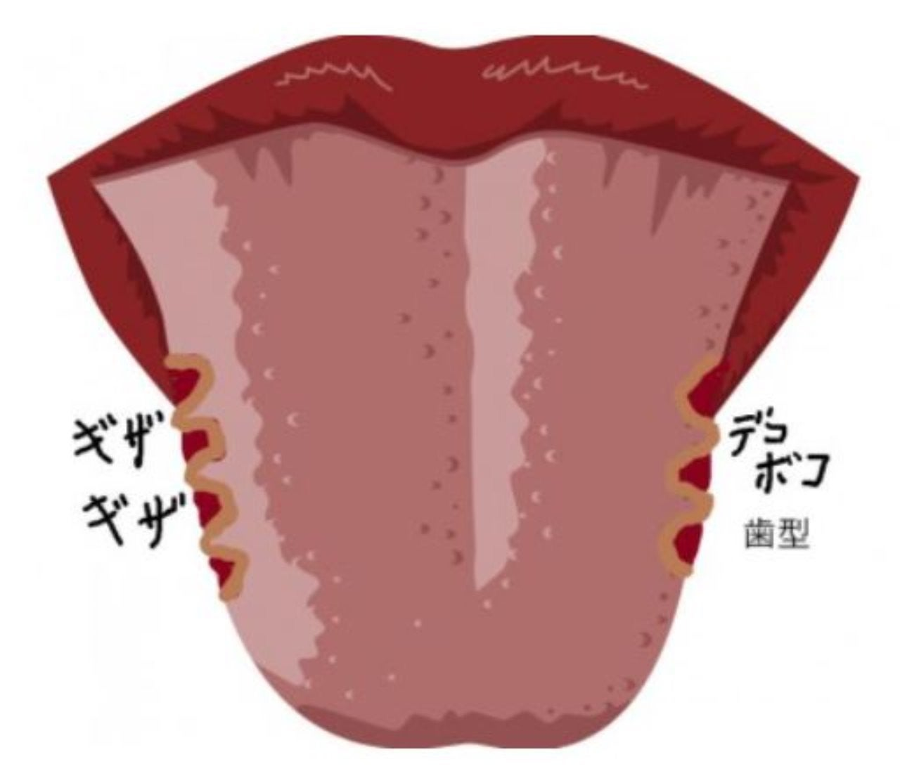 治す 舌 白い