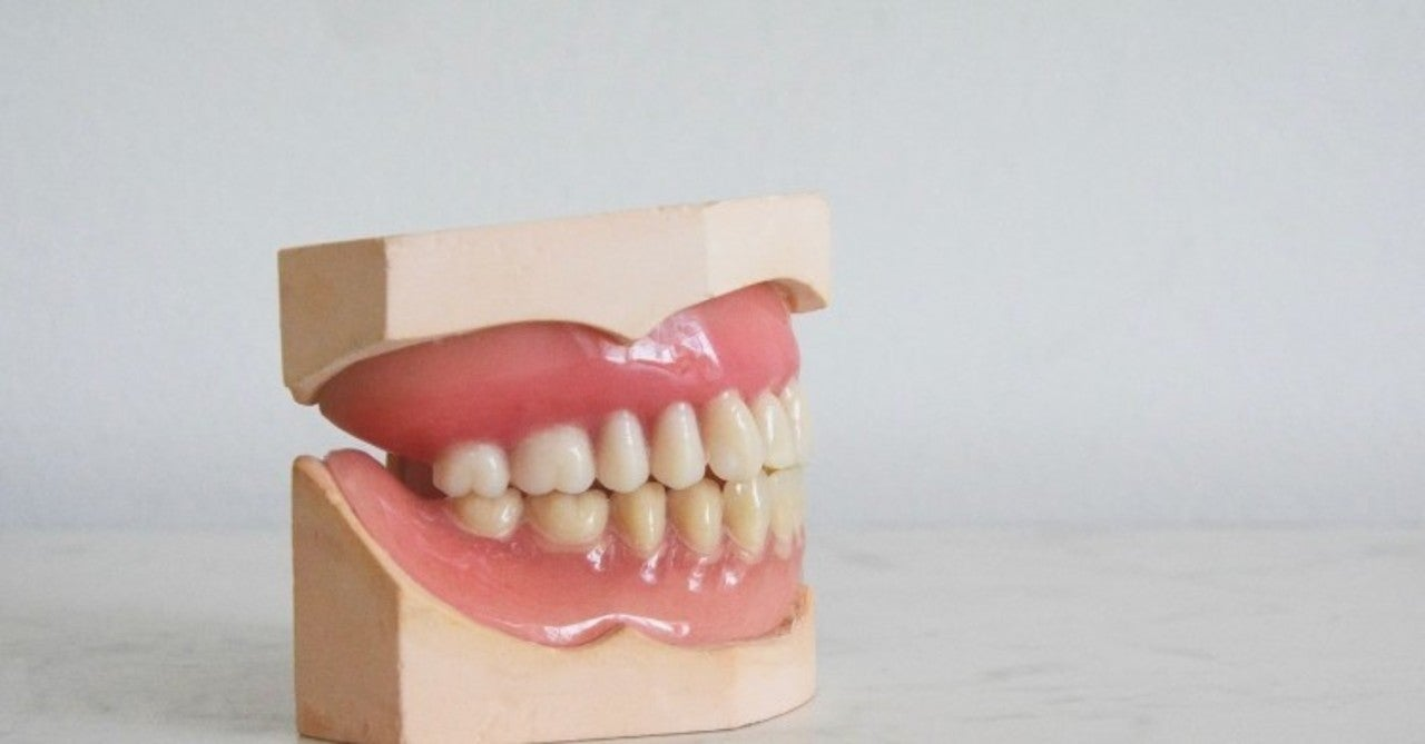 差し歯 接着 剤 ドラッグ ストア