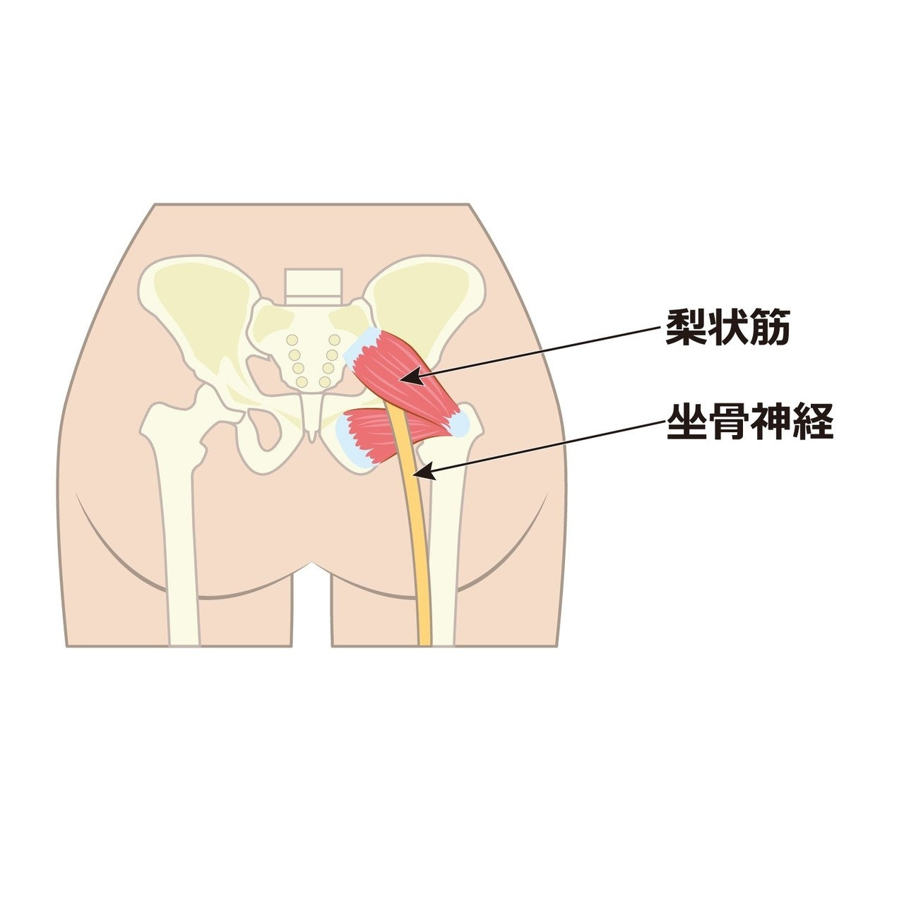 坐骨神経痛と梨状筋|海老名ずずらん整体院|note