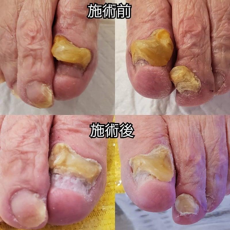 親指 足 の 爪 臭い の