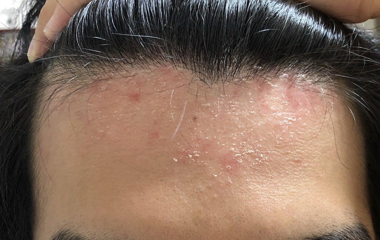 治し 性 皮膚 方 漏 炎 脂