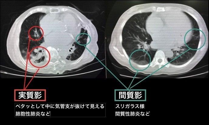 線維 化 が 肺