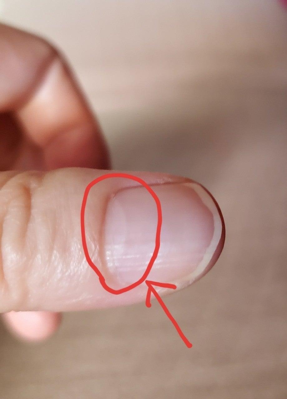 ない 爪 半月 爪をみれば病気が分かる!こんな爪は病気の疑いあり
