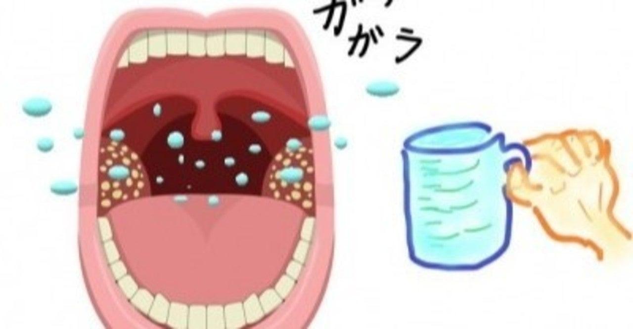 取れるタイミング 膿栓