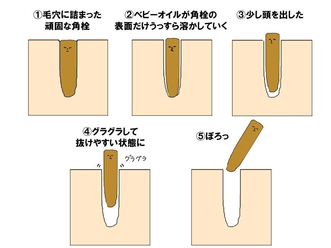 角栓が取れるクレンジング フルリ クレンジングのリアルな口コミ!角栓がポロポロとれるって本当?メリットデメリットも紹介します