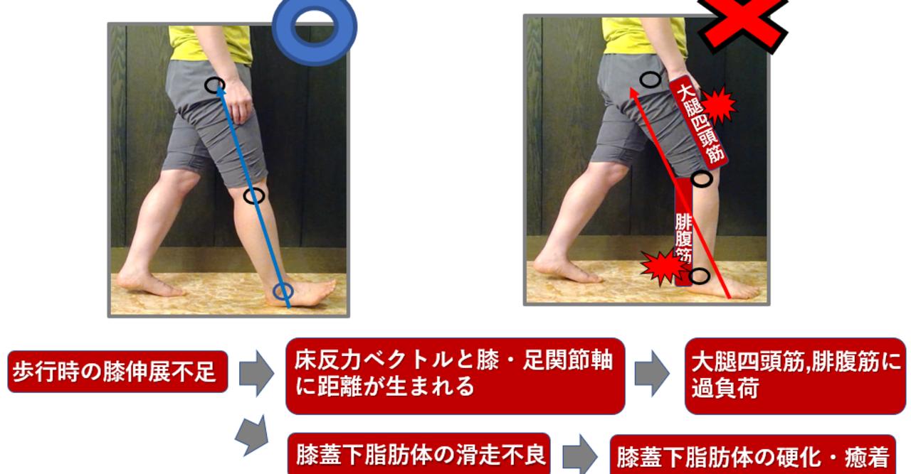 屈曲 腓腹筋 位 関節 膝