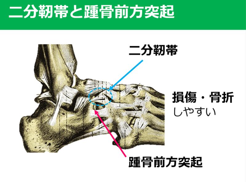 二分 靭帯 損傷