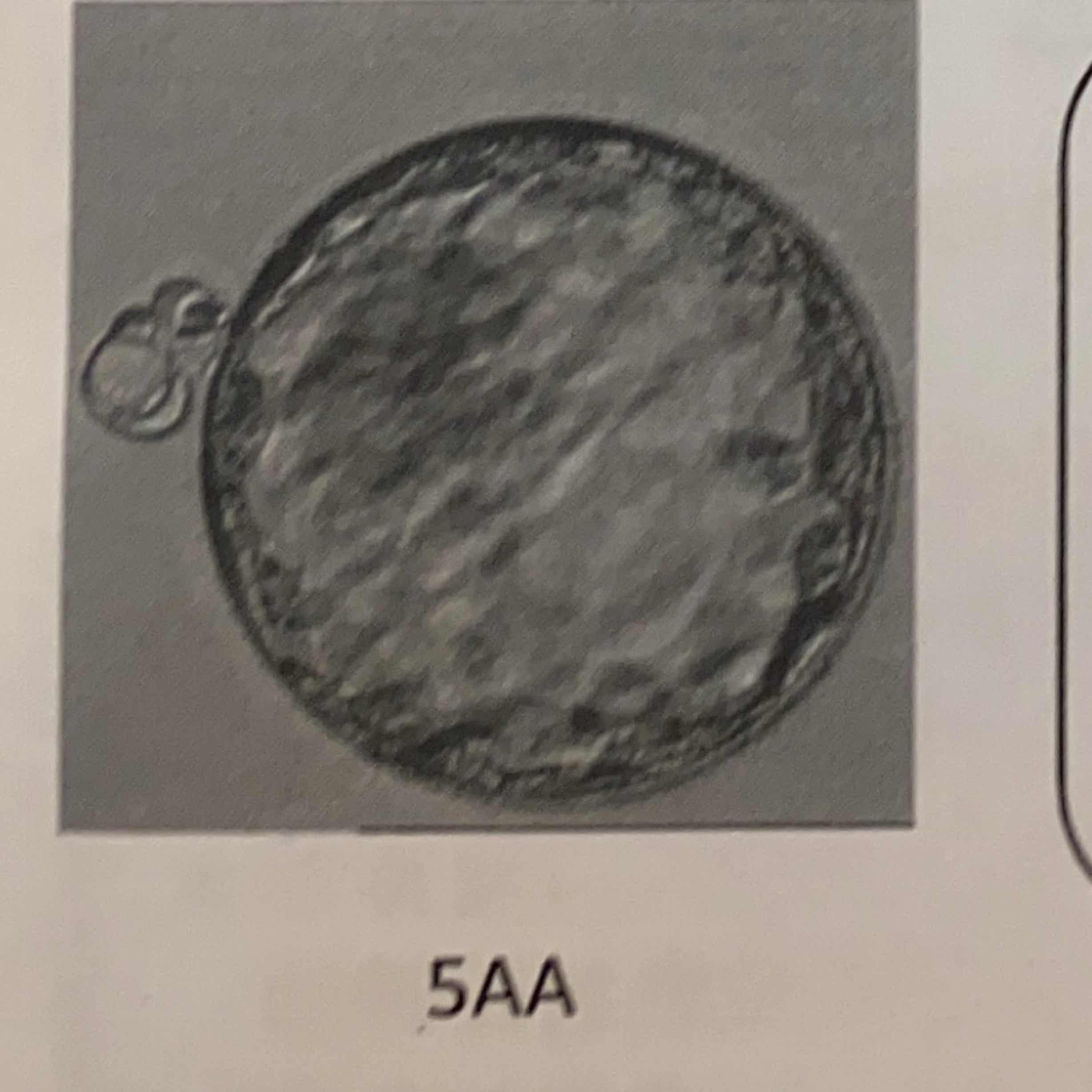 出産予定日 胚盤胞