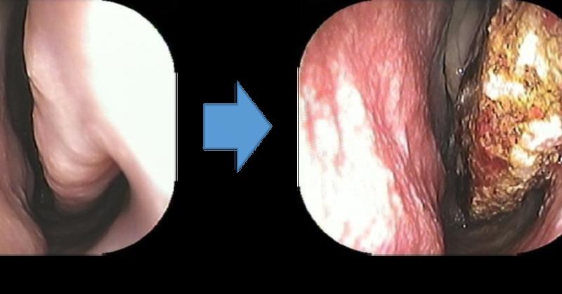 症 手術 花粉