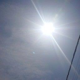 免疫の最前線の戦士マクロファージはビタミンdにより活性化されるので太陽の下に出よう説 マツジュン Note