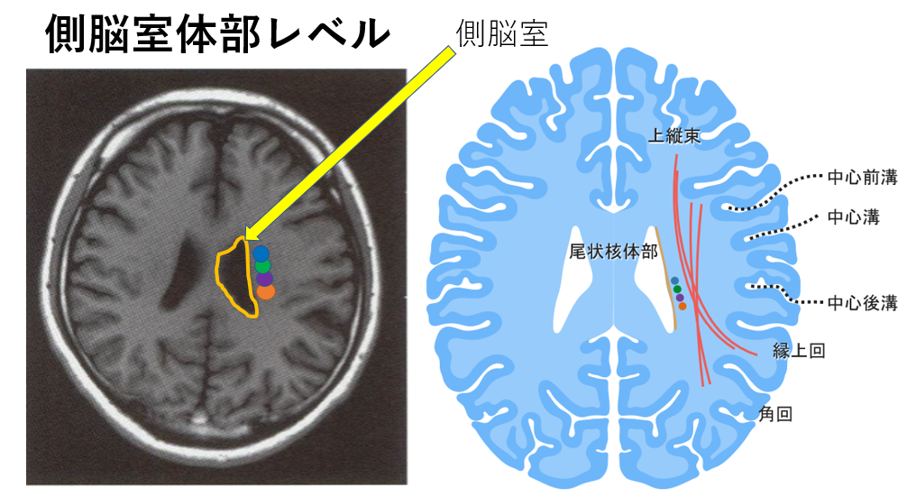 側脳室体部レベル