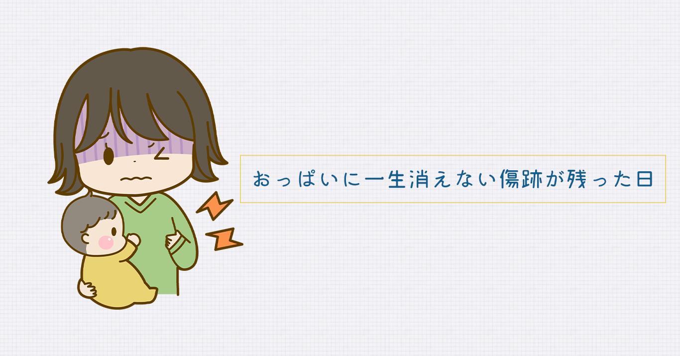冷やす 乳腺 炎