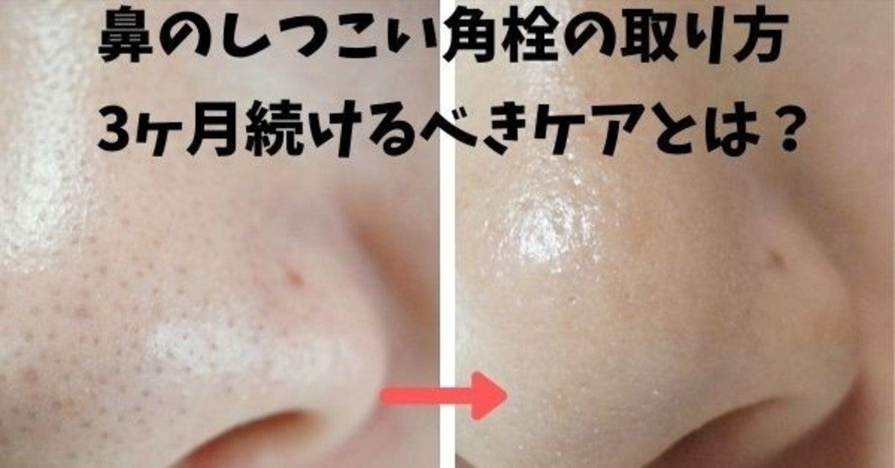 鼻の角栓 取れない 角栓がずっと取れないということはある? あしたの美肌 専門家によ...