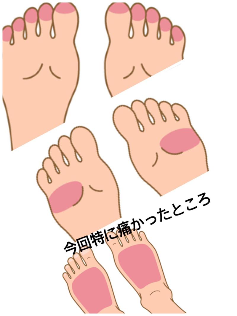 つぼ ところ 足 痛い