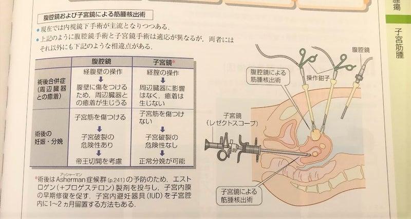 筋腫 費用 子宮 手術