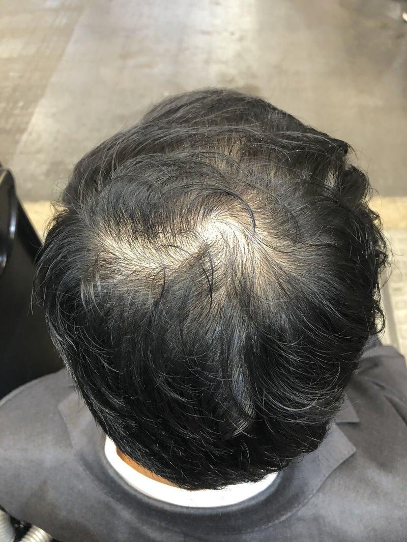 すごい 抜け毛