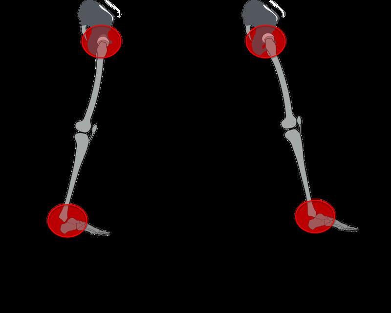 足部と骨盤の位置関係