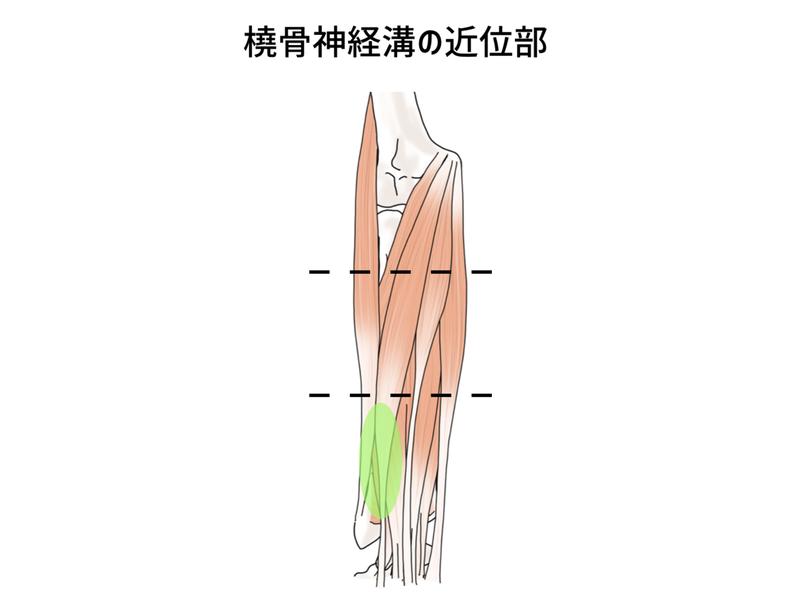 橈骨神経香