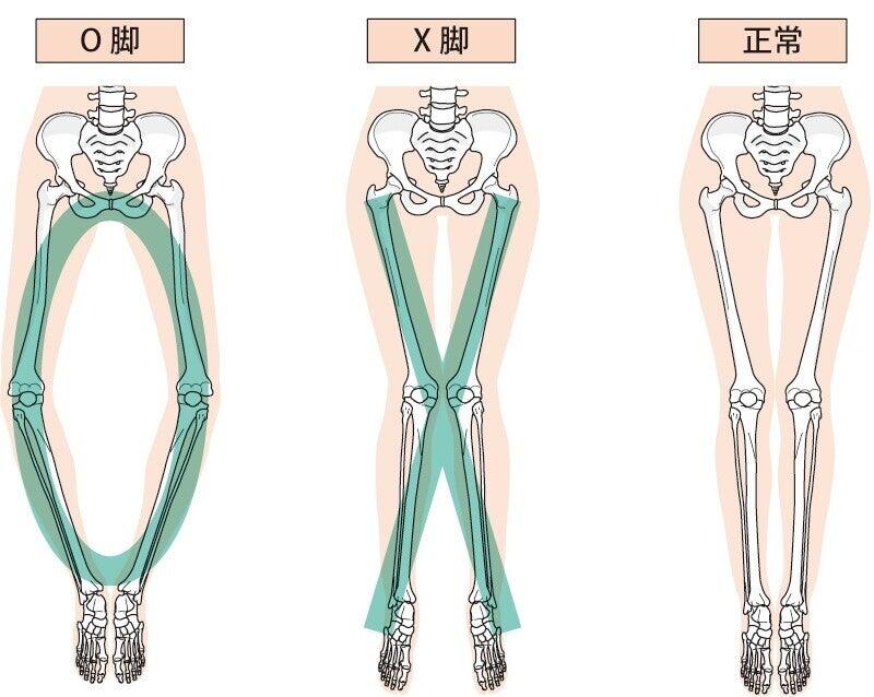 脚の形 O脚 X脚 正常