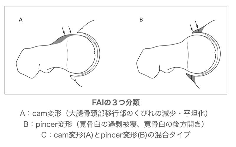 FAIの分類