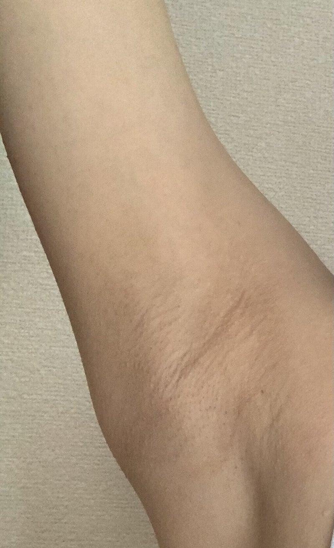 脇 脱毛 湘南 湘南・脇医療脱毛4/6回の効果と契約のポイント|紡|note