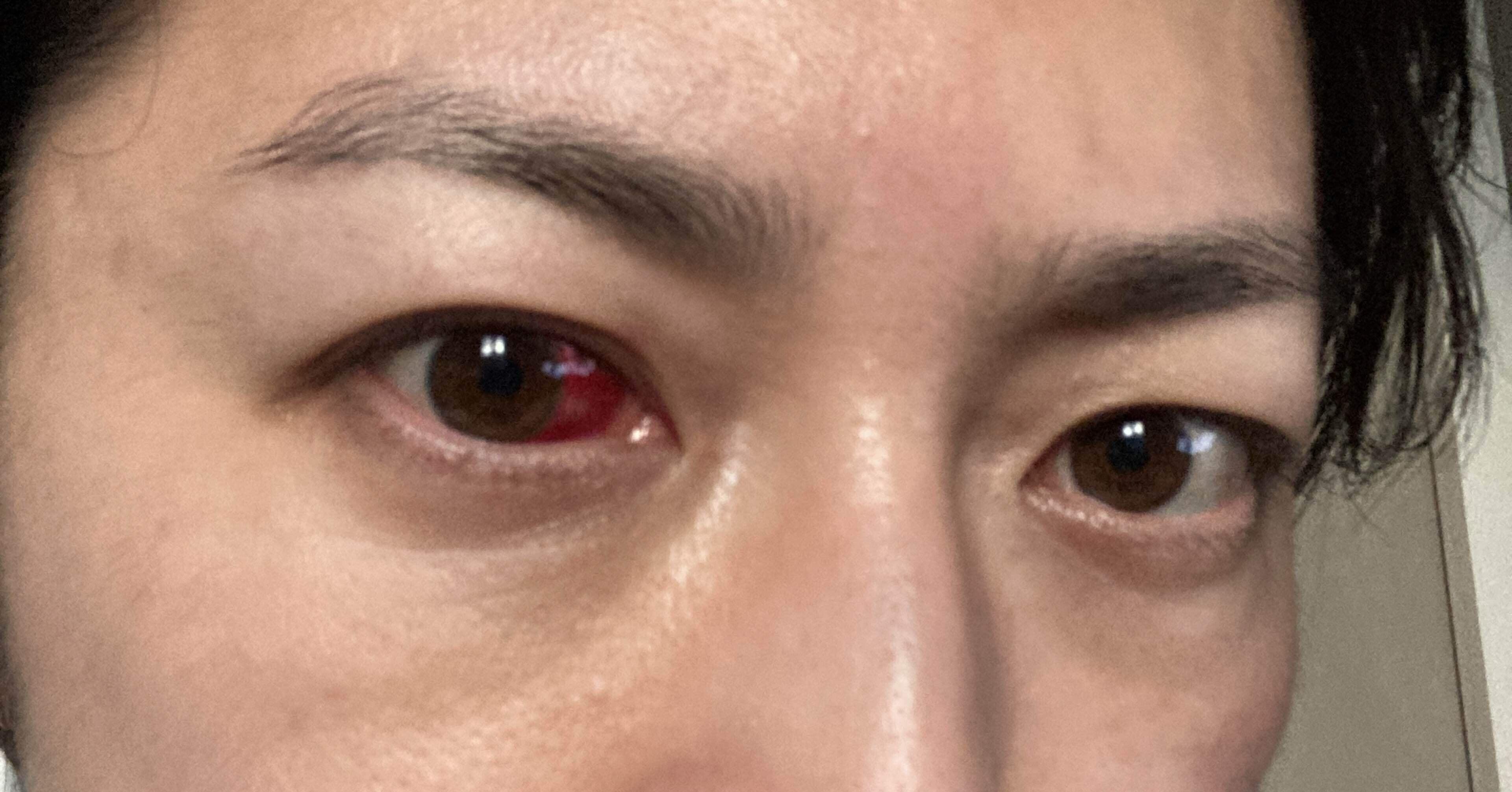 白目 の 出血 原因