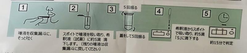 検査の手順