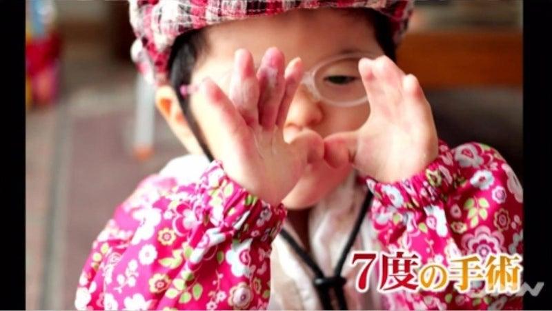 """骨に異常の難病"""" 闘い生きる7歳少女… 札幌冬物語 ニュースが少しスキ ..."""