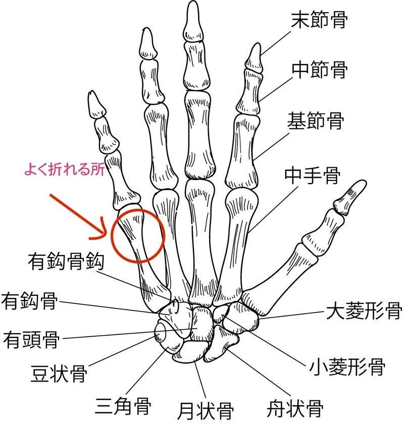 手骨折 ボクサー骨折 解剖 骨