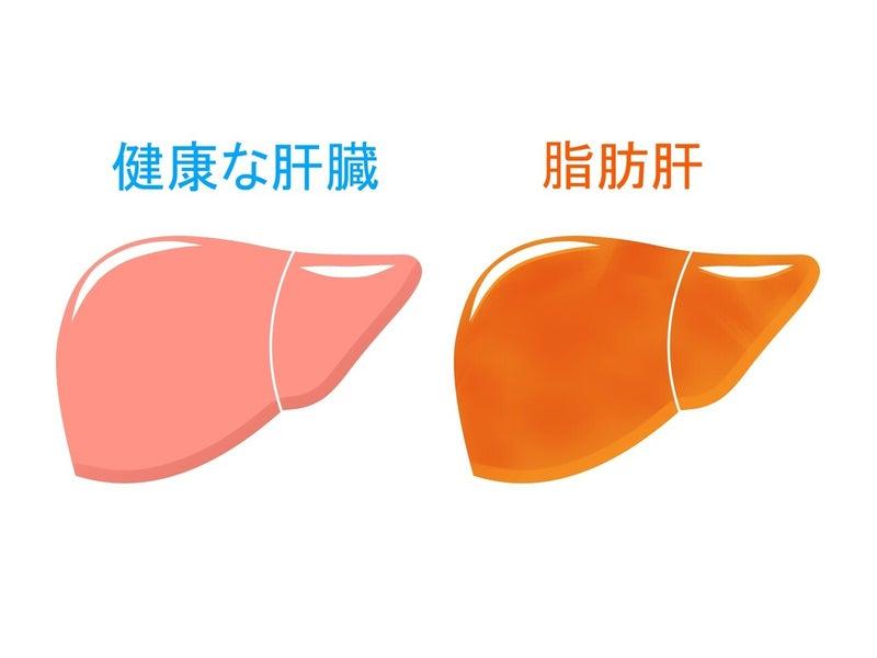 肝臓 健康な肝臓 脂肪肝